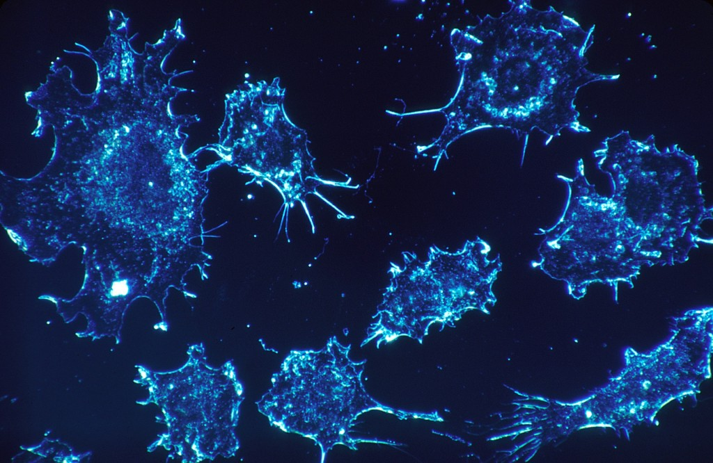 An electron microscope image of cancer cells. (Pixabay.com image.)