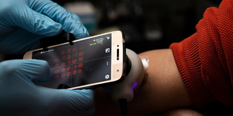Biomedical engineers develop 'smart' sensor bandages